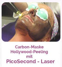 Hollywood Peeling